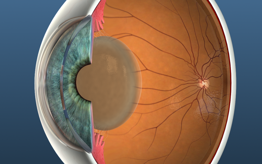 Five Cataract Myths to Clear Up for Your Patients