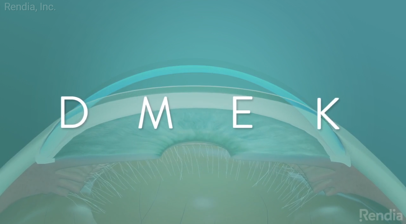 New Eye Care Videos Explain IOLs, DMEK, MIGS to Patients