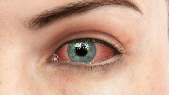 How Patients (and Doctors) Get Pink Eye Treatment Wrong