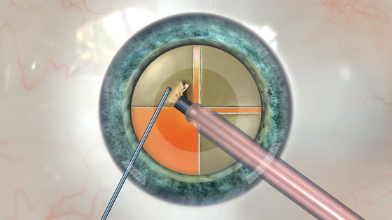 Three Ways to Reach More Cataract Patients