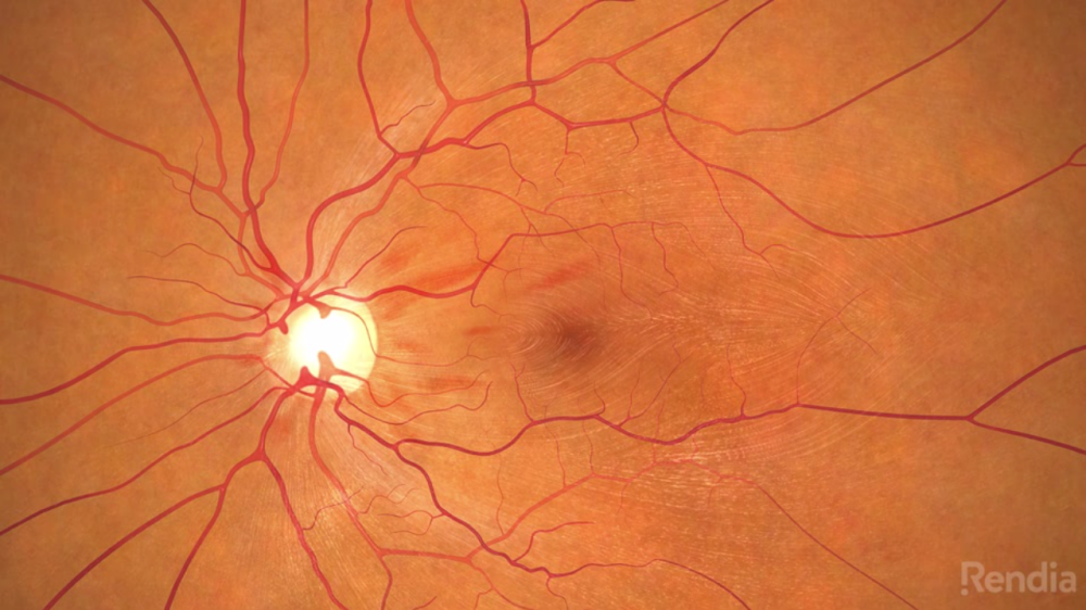 A Treatment for an 'Untreatable' Blinding Condition