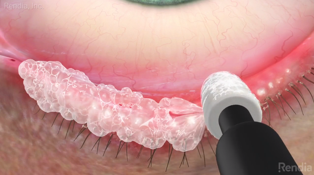 New Treatment Options for Blepharitis