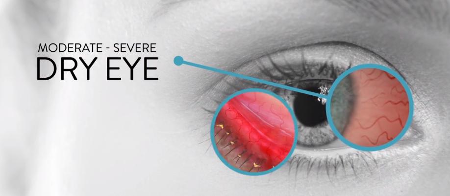 The Economic Impact of Dry Eye
