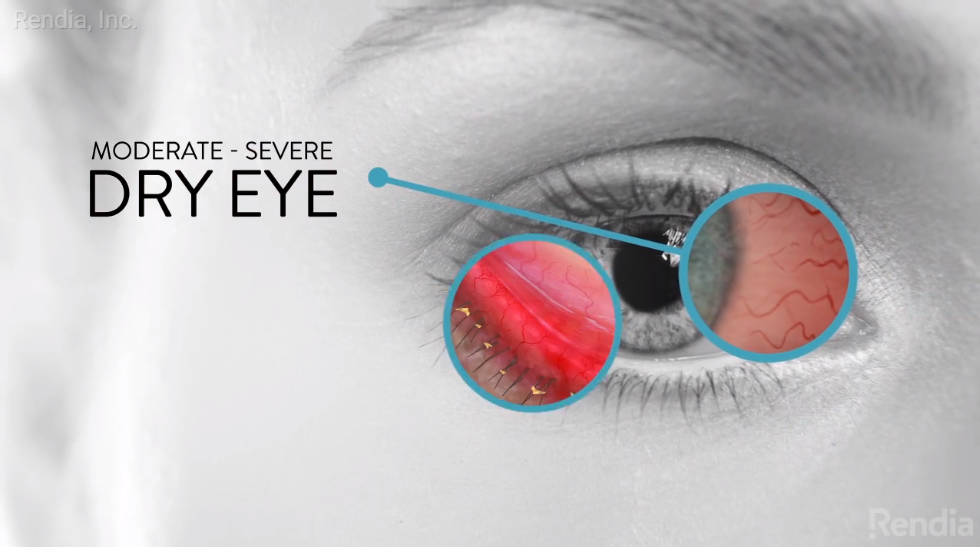 Image of dry eye disease