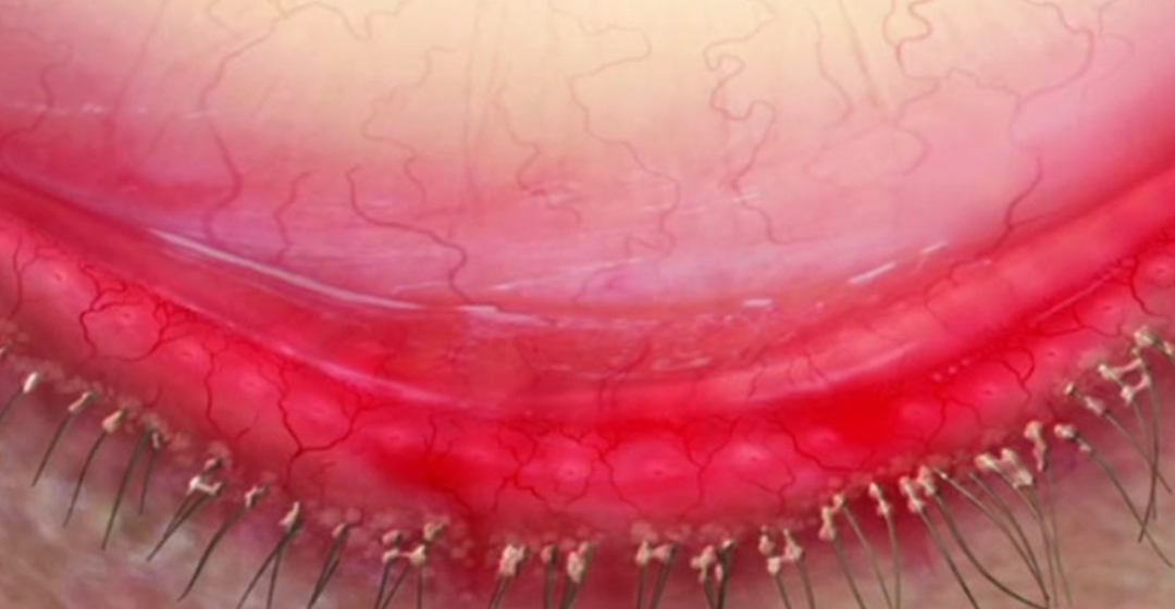 Educating Patients on Demodex Blepharitis