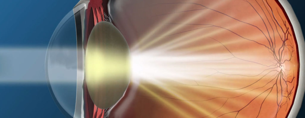 Illustration of an eye with a cataract